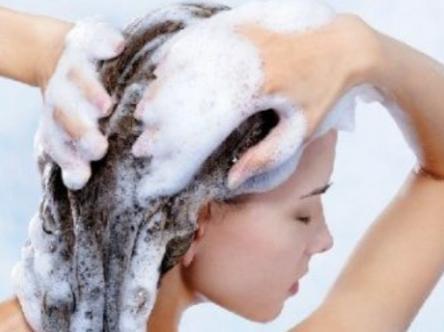 头部脂溢性皮炎治疗方法